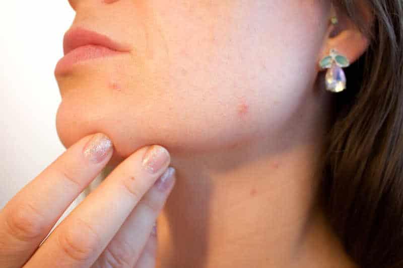 Intervallfasten gegen Rosazea und Entzündungen